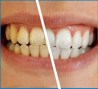 teeth whitening before after2