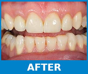 Teeth Whitening after picture